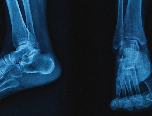 Stress Fractures in runners