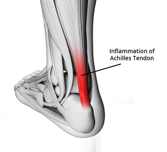 Achilles injuries and return to running